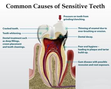 Sensitive-teeth-causes